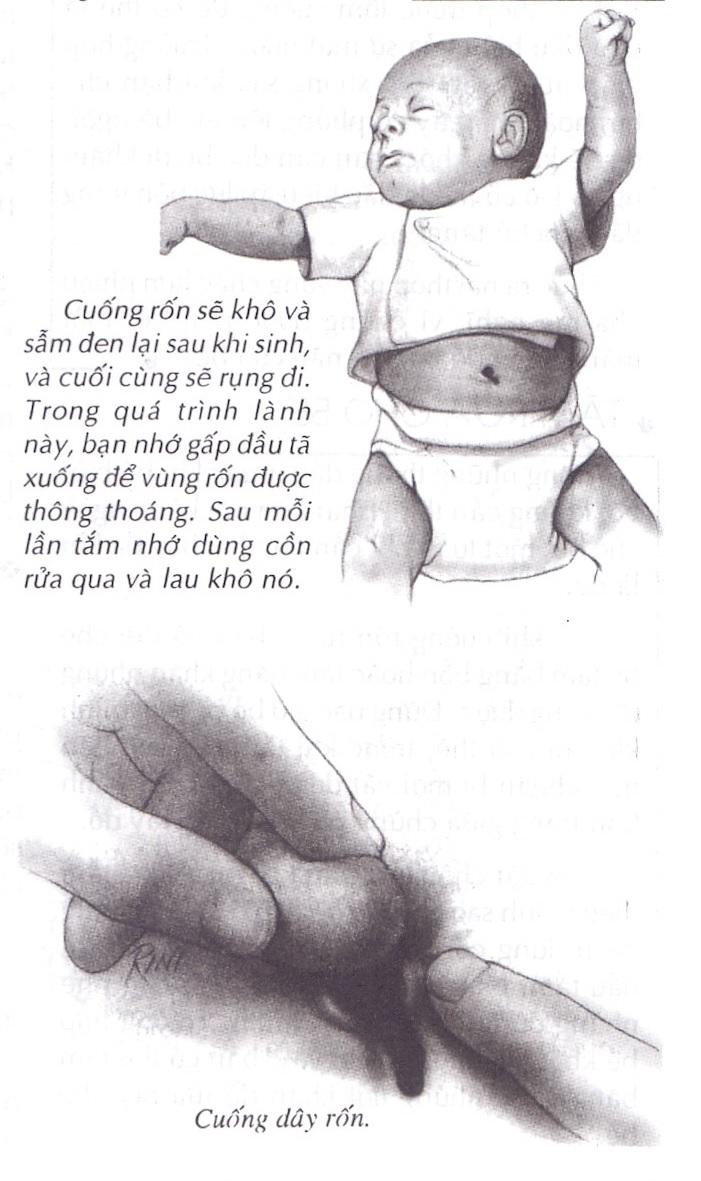 Cần cẩn trọng khi cắt dây rốn của bé