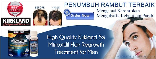 Jual Penumbuh Rambut Terbaik - Krikland Signature Minoxidil Original