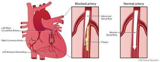 Arteri normal dan arteri tersumbat