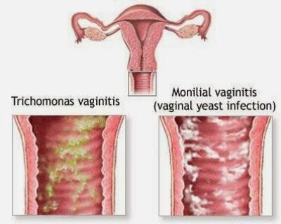 Peachy Homeocare International Pvt Ltd Vaginitis Causes Home Interior And Landscaping Spoatsignezvosmurscom