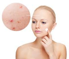 Do Cosmetics Causes Acne?