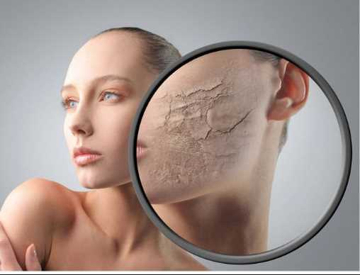 Dry skin treatment at home