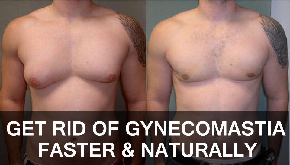 get rid of gynecomastia fast naturally