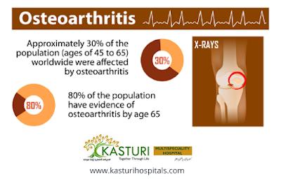 http://kasturihospitals.com/orthopaedics/arthritis-care/osteoarthritis/index.html