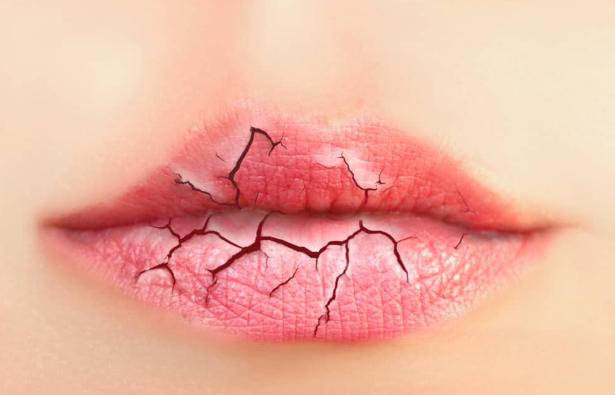 Cara Mengatasi Masalah Bibir Kering Dan Pecah-Pecah secara alami