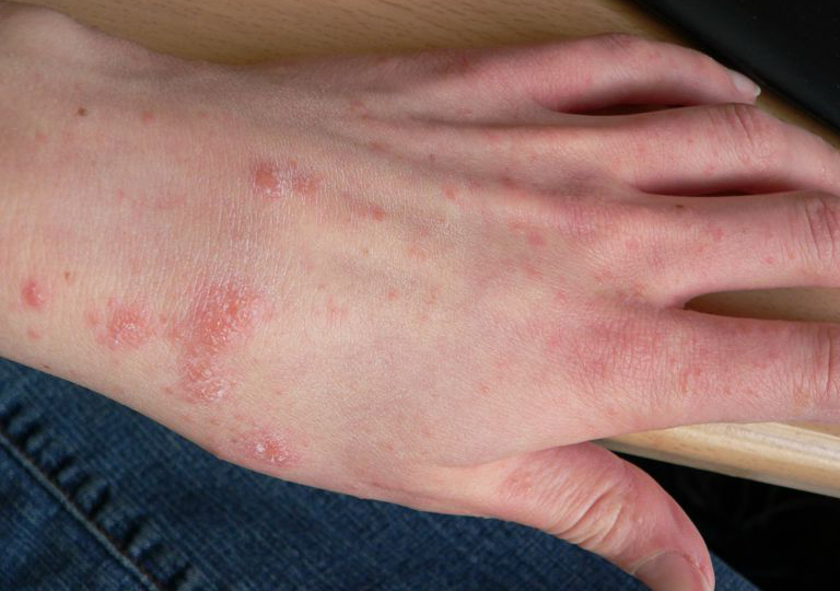 12 Perfect and Effective Home Remedies for Scabies
