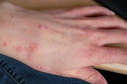 12 Useful Home Remedies for Scabies