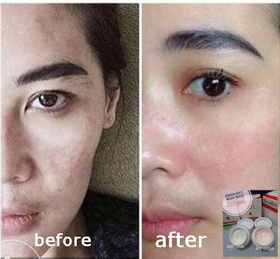Cream Wajah Permanen Dan Praktis Atasi Bintik Hitam Pada Wajah