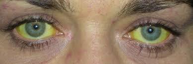Ochi galbui din cauza hepatitei