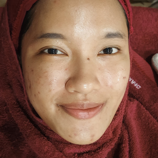 Before Laser Black Doll Treatment Enhaka Beauty Care