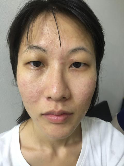 Acne skin before treatment