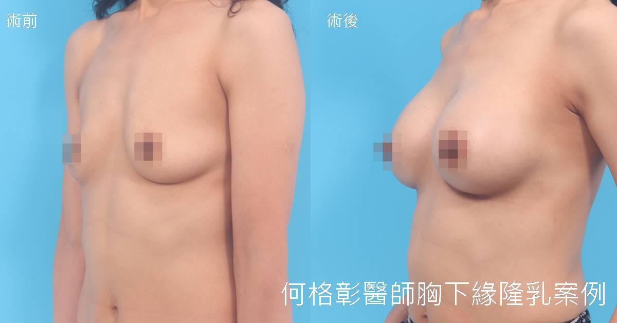 胸下緣隆乳台中推薦