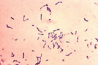 Corynebacterium diphtheriae, bacteria que ocasiona la difteria.