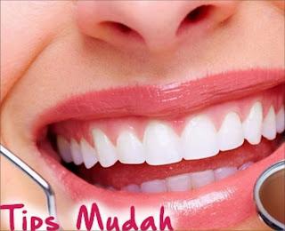 5 foods to maintain white teeth