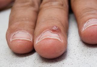 verruga o tumor en la base de la uña