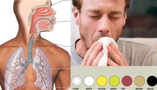 Types de mucus: Ce que dit la couleur de votre mucus au sujet de votre santé