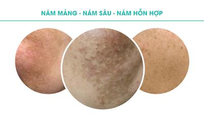Phân biệt các loại nám da