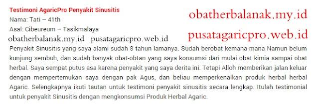 Obat Sinusitis Herbal Paling Ampuh