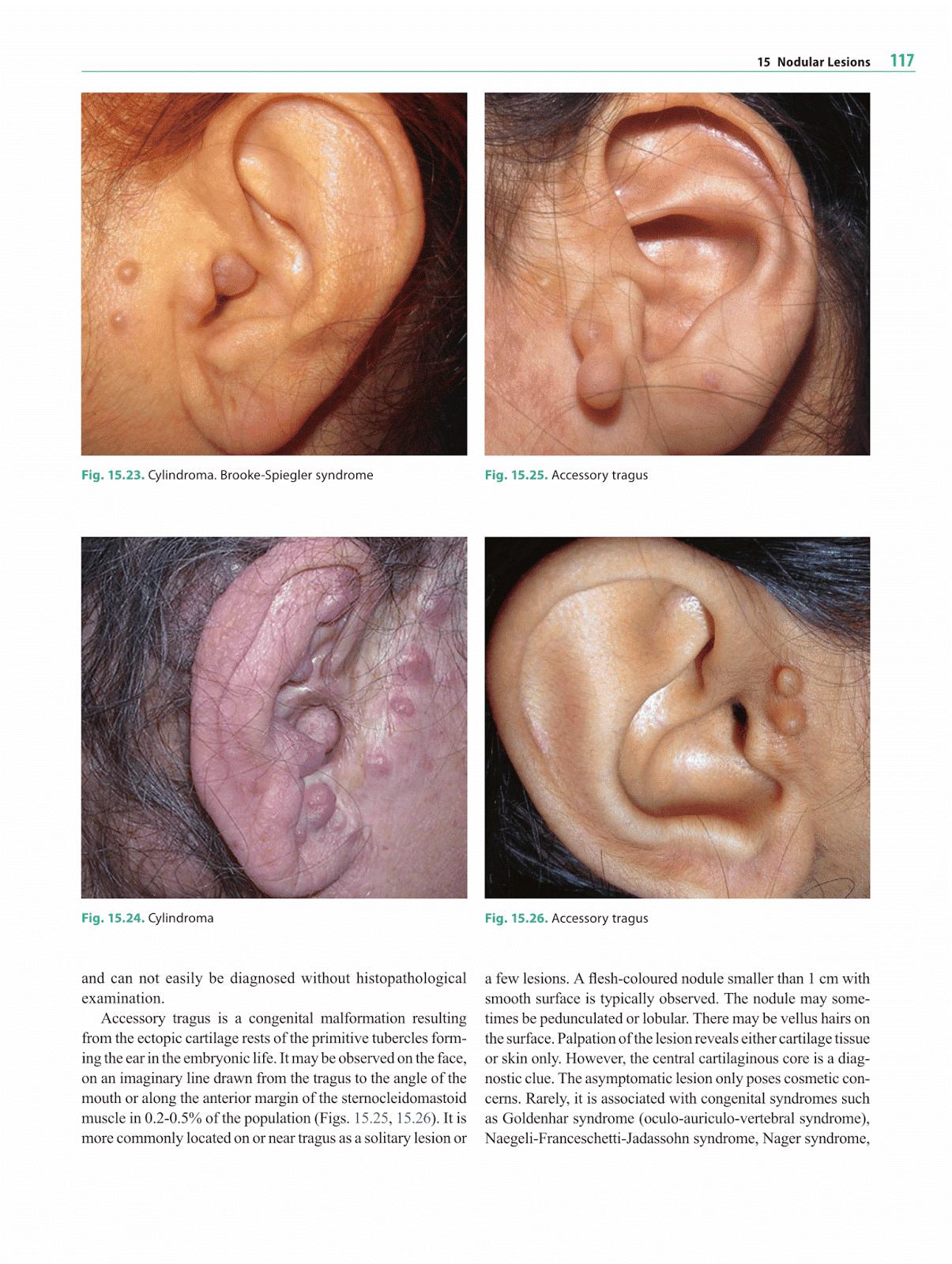 Otolaryngology by Alexandros G Sfakianakis: Nodular Lesions