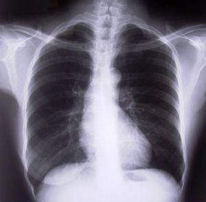 cara mengatasi flek paru paru