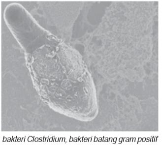 bakteri batang gram positif