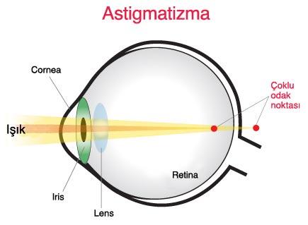 astigmat ile ilgili görsel sonucu