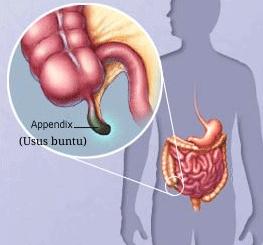 obat usus buntu di apotik
