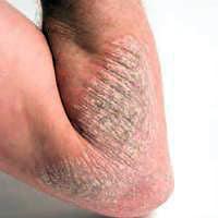 Cara yang mudah untuk menjaga kulit dari iritasi akibat penyakit eksim