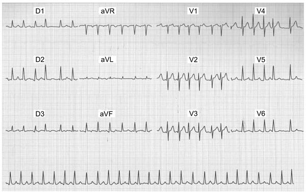 resultado eletrocardiograma