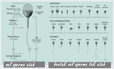 Cara Pengobatan Dan Penyembuhan Teratozoospermia Pada Infertilitas Atau Kemandulan Pria