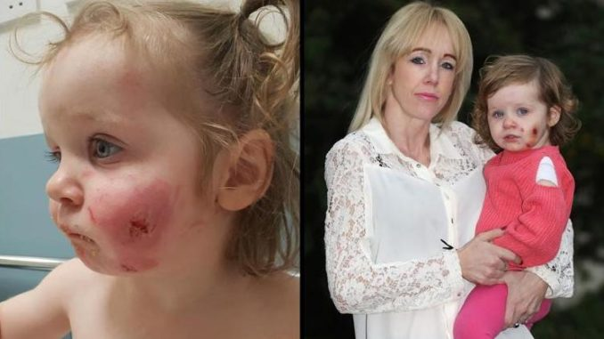 Muslim Boys Attack Toddler Leaving 15 Bite Marks On Her Face – Media Blackout