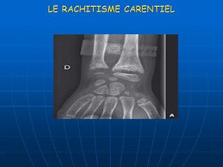 LE RACHITISME CARENTIEL .pdf