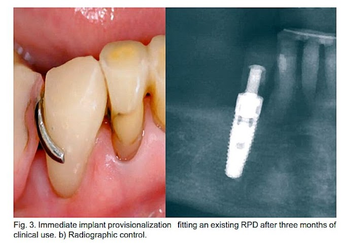CLINICAL CASE: A Chairside Technique to Preserve the Anatomy of the Pre-Existing Crown in Immediate Implant Provisionalization