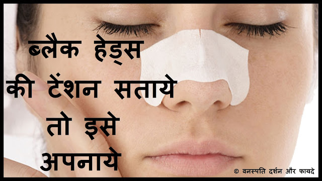 Blackheads ki Tension Sataye to Ise Apnaayen
