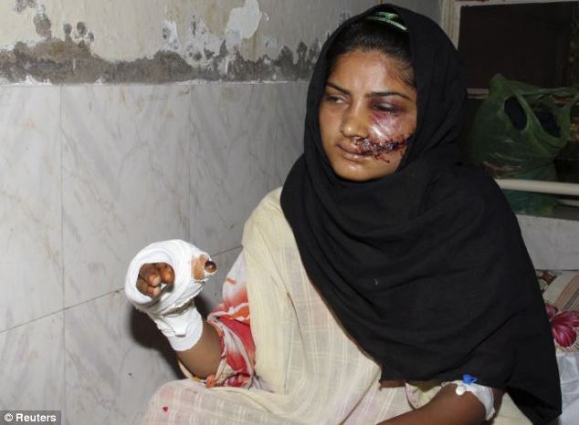 girl in pakistan servived a honor killing