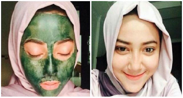 Seminggu 3 X Maskeran Pake Ekstrak Daun Sirih, Jerawat & Komedo Hilang, Kulit Wajah Jadi Kencang!!