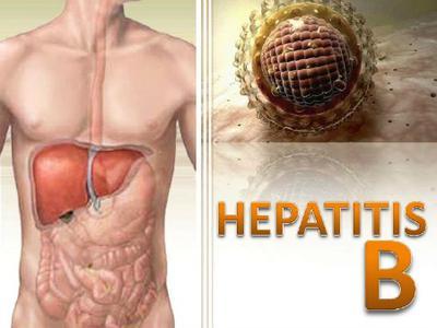 cara mengatasi penyakit hepatitis B