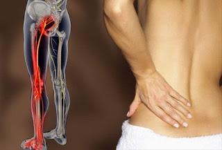 Soulager une sciatique naturellement : remèdes maison anti-douleur