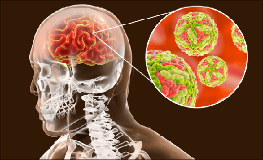 Encephalitis, inflammatory condition of the brain, encephalitis syndrome, encephalitis symptoms