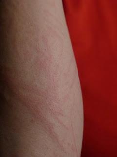 Inilah Hal-Hal Yang Bisa Menyebabkan Alergi Pada Kulit