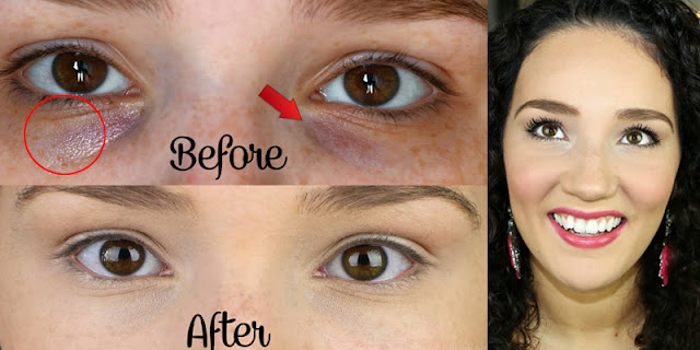 Get Rid Of Dark Circles Very Fast At Home By Using Natural Home Remedies