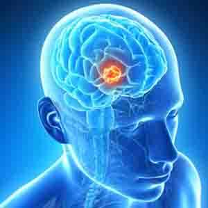 General and Specific Brain Tumor Symptoms in Women