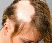 kadınlar Saçkıran için Ne Kullanır erkekler saçkıran için ne kullanmalı