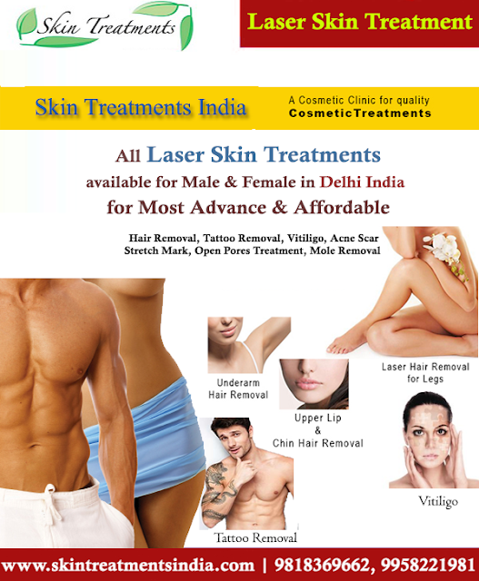 #LaserTreatment #TattooRemoval #Tattoos #SkinTreatment #SkinCareClinic #Delhi #India #LaserTreatment #vitiligotreatment #whitespottreatment #skinpigmentation #laserhairremoval #moleremoval #acnescar #openpores