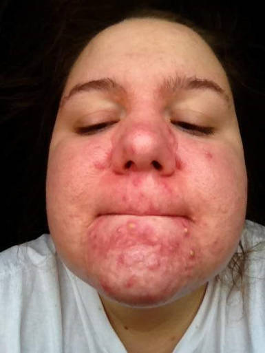 oral steroids for acne treatment