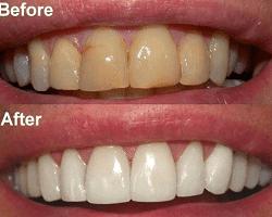 12 Cara Memutihkan Gigi Dengan Bahan Alami Yang Sudah Terbukti Ampuh