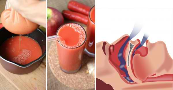 1 Simple Remedy to Naturally Get Rid of Snoring and Sleep Apnea Fast