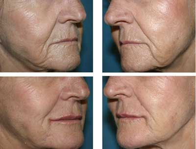 Collagen Deficiency And The Breakdown Of Suppleness In Epidermis Happen To All Us At Some Time Jowls Hang Down Cheek Skin Gets Flabby As A