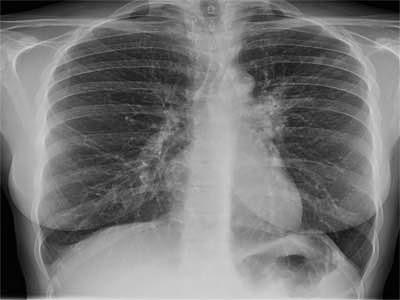 Gejala TBC Tulang
