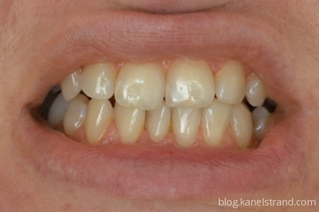 Benefit Of Turmeric For Oral Health - HEALTH GUIDE 911 |Turmeric Teeth Before And After